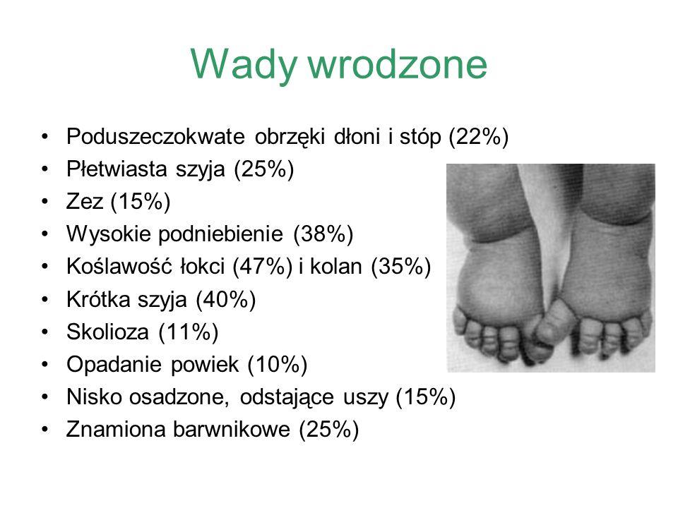 Wady wrodzone Poduszeczokwate obrzęki dłoni i stóp (22%) Płetwiasta szyja (25%) Zez (15%) Wysokie podniebienie (38%) Koślawość łokci (47%) i kolan (35