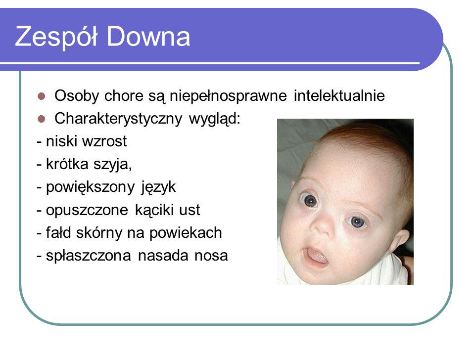 Zespół Downa Osoby chore są niepełnosprawne intelektualnie Charakterystyczny wygląd: - niski wzrost - krótka szyja, - powiększony język - opuszczone k
