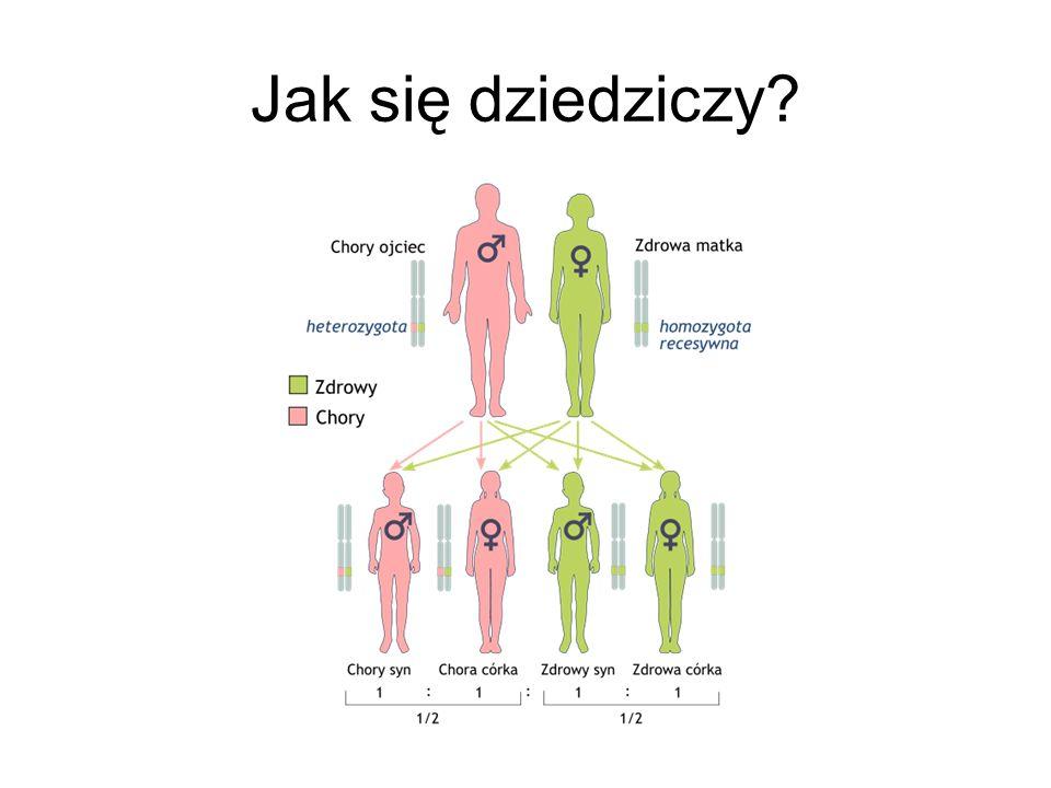 Źródła: http://abcanemia.pl/anemia-sierpowata http://www.prozdrowie.pl/Artykuly/Zdrowie-A- Z/Niedokrwistosc/Egzotyczna-niedokrwistosc-sierpowatahttp://www.prozdrowie.pl/Artykuly/Zdrowie-A- Z/Niedokrwistosc/Egzotyczna-niedokrwistosc-sierpowata http://pl.wikipedia.org/wiki/Anemia_sierpowata http://pl.wikipedia.org/wiki/Albinizm http://www.google.pl/imghp?hl=pl&tab=wi http://pl.wikipedia.org/wiki/Zesp%C3%B3%C5%82_Turnera http://www.e- przychodnia.org/choroby_genetyczne/index.php?id=10363http://www.e- przychodnia.org/choroby_genetyczne/index.php?id=10363 http://pl.wikipedia.org/wiki/Zesp%C3%B3%C5%82_Klinefeltera http://www.zespol-downa.website.pl/ http://47xxy.strefa.pl/ http://pl.wikipedia.org/wiki/Zesp%C3%B3%C5%82_Downa http://zdrowie.gazeta.pl/Zdrowie/1,101459,8978549,Amniopunkcja.h tmlhttp://zdrowie.gazeta.pl/Zdrowie/1,101459,8978549,Amniopunkcja.h tml