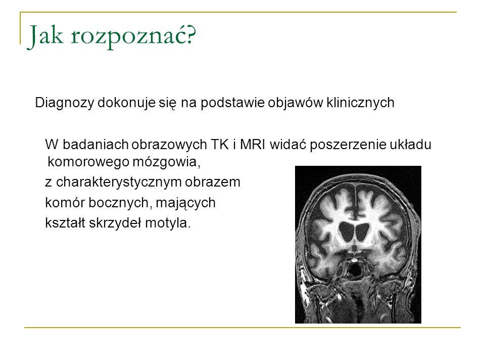 Jak rozpoznać? Diagnozy dokonuje się na podstawie objawów klinicznych W badaniach obrazowych TK i MRI widać poszerzenie układu komorowego mózgowia, z