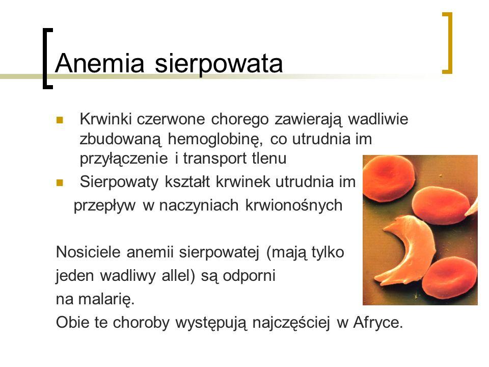 Anemia sierpowata Krwinki czerwone chorego zawierają wadliwie zbudowaną hemoglobinę, co utrudnia im przyłączenie i transport tlenu Sierpowaty kształt
