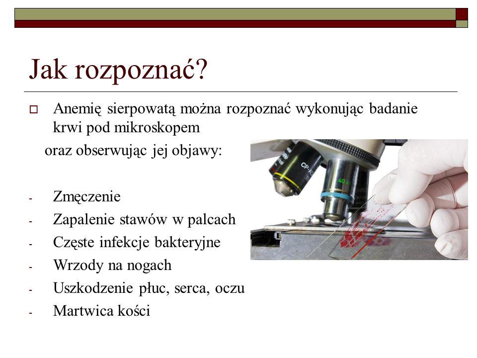 Jak rozpoznać? Anemię sierpowatą można rozpoznać wykonując badanie krwi pod mikroskopem oraz obserwując jej objawy: - Zmęczenie - Zapalenie stawów w p