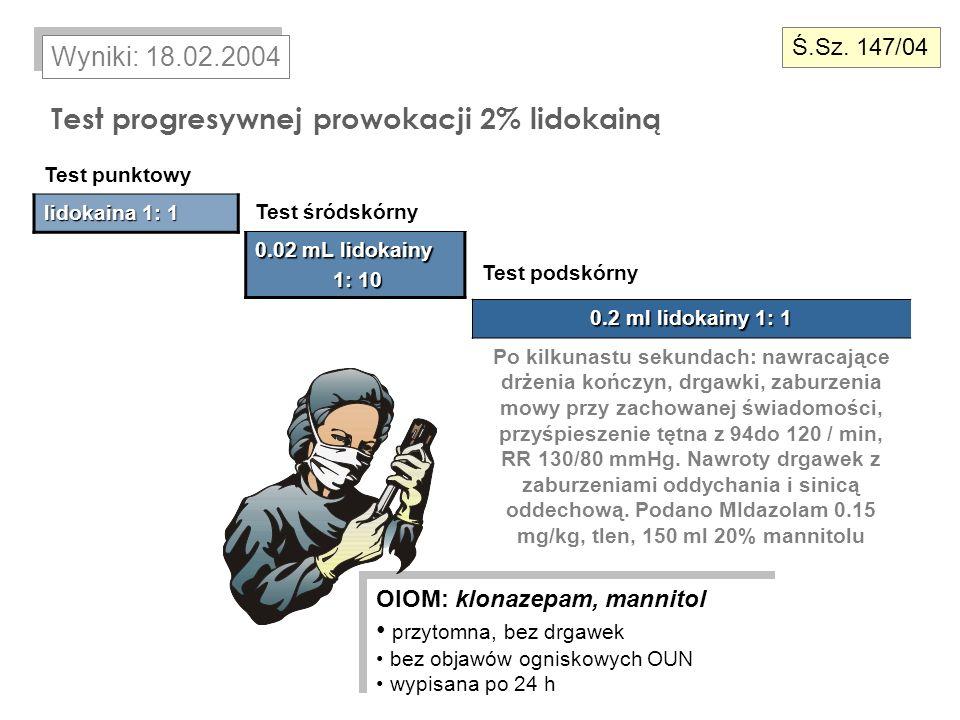 Test progresywnej prowokacji 2% lidokainą Wyniki: 18.02.2004 Test punktowy lidokaina 1: 1 Test śródskórny 0.02 mL lidokainy 1: 10 1: 10 Test podskórny