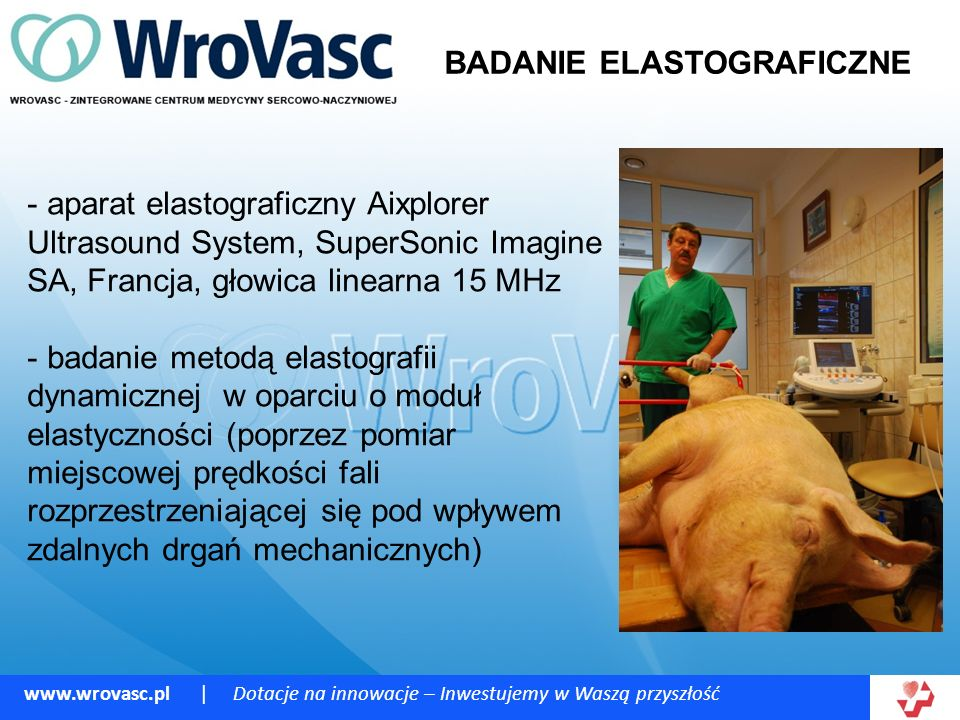 www.wrovasc.pl | Dotacje na innowacje – Inwestujemy w Waszą przyszłość BADANIE ELASTOGRAFICZNE - aparat elastograficzny Aixplorer Ultrasound System, SuperSonic Imagine SA, Francja, głowica linearna 15 MHz - badanie metodą elastografii dynamicznej w oparciu o moduł elastyczności (poprzez pomiar miejscowej prędkości fali rozprzestrzeniającej się pod wpływem zdalnych drgań mechanicznych)