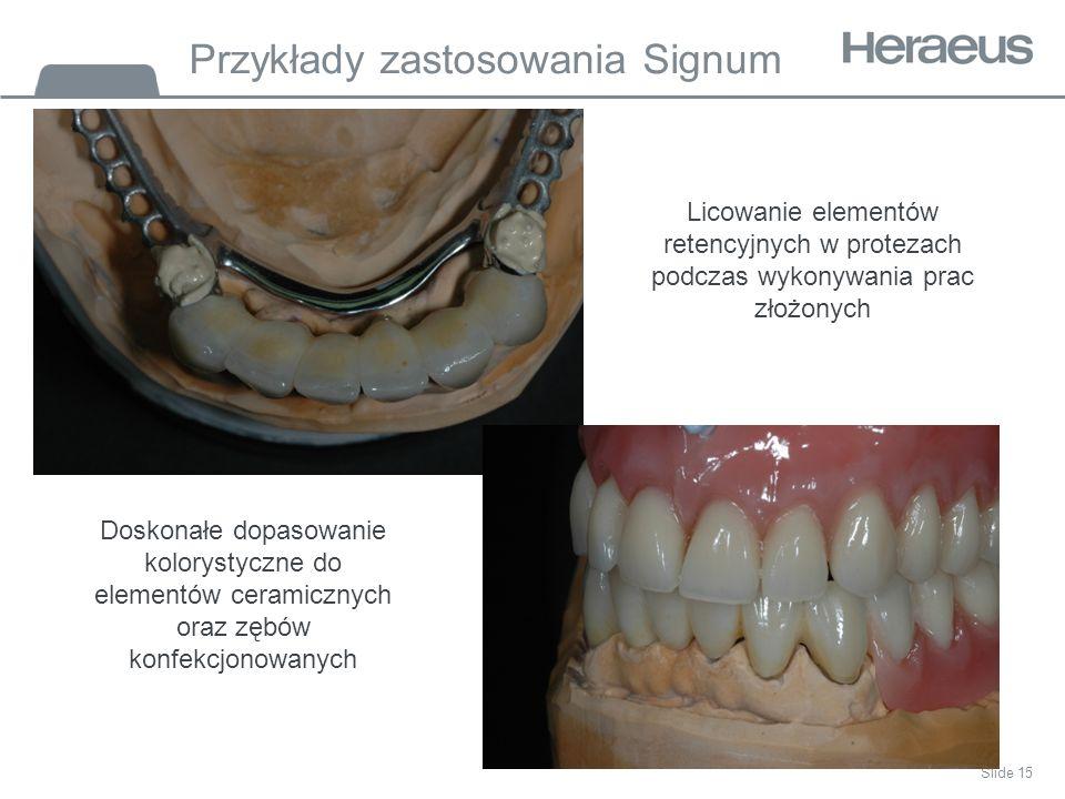 Przykłady zastosowania Signum Slide 15 Licowanie elementów retencyjnych w protezach podczas wykonywania prac złożonych Doskonałe dopasowanie kolorystyczne do elementów ceramicznych oraz zębów konfekcjonowanych