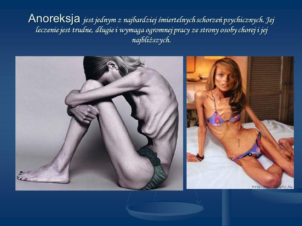 Anoreksja jest jednym z najbardziej śmiertelnych schorzeń psychicznych. Jej leczenie jest trudne, długie i wymaga ogromnej pracy ze strony osoby chore