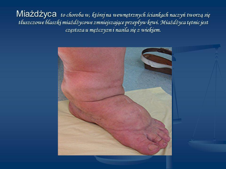 Miażdżyca to choroba w, której na wewnętrznych ściankach naczyń tworzą się tłuszczowe blaszki miażdżycowe zmniejszające przepływ krwi. Miażdżyca tętni