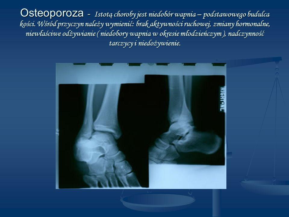 Osteoporoza - Istotą choroby jest niedobór wapnia – podstawowego budulca kości. Wśród przyczyn należy wymienić: brak aktywności ruchowej, zmiany hormo