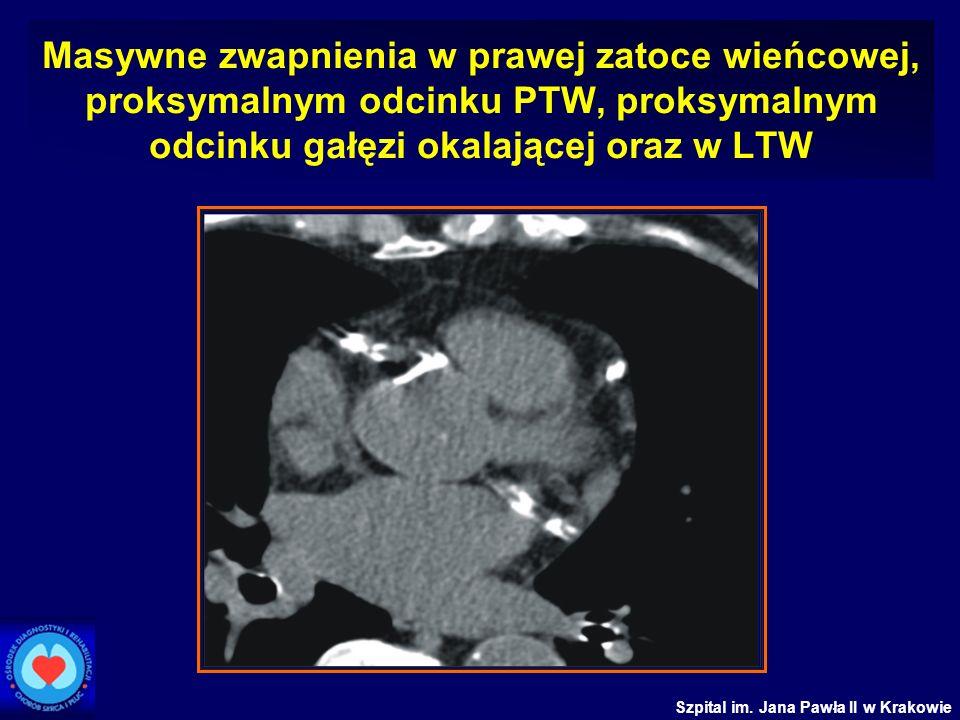 Szpital im. Jana Pawła II w Krakowie Masywne zwapnienia w prawej zatoce wieńcowej, proksymalnym odcinku PTW, proksymalnym odcinku gałęzi okalającej or