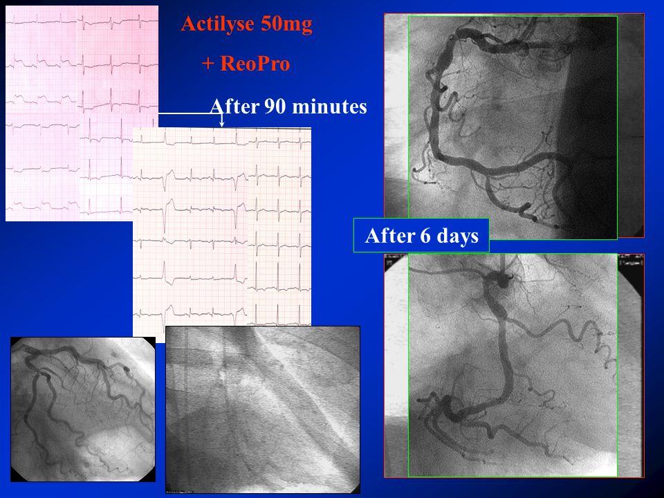 zawał serca – ST ból < 12 h transport > 90 min ½ dawki fibrynolityku + pełna dawka blokera Gp IIb/IIIa Wspomagana angioplastyka wieńcowa Małopolski Program Interwencyjnego Leczenia Zawału Serca TRANSPORT CHOREGO Wspomagana angioplastyka wieńcowa w świeżym zawale serca