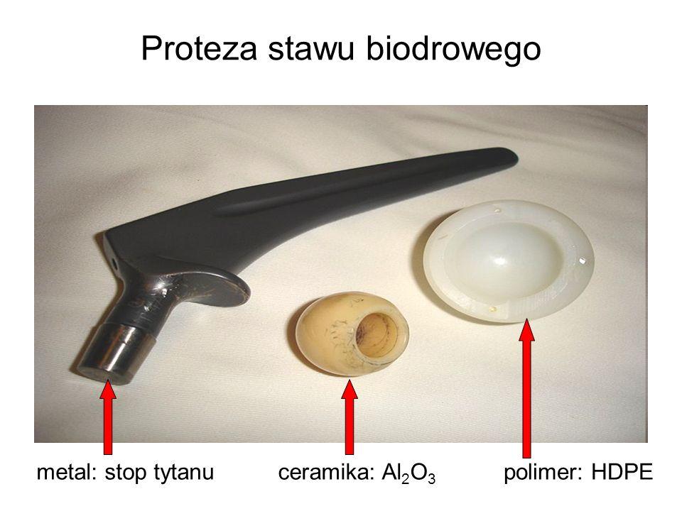 Proteza stawu biodrowego metal: stop tytanu polimer: HDPE ceramika: Al 2 O 3