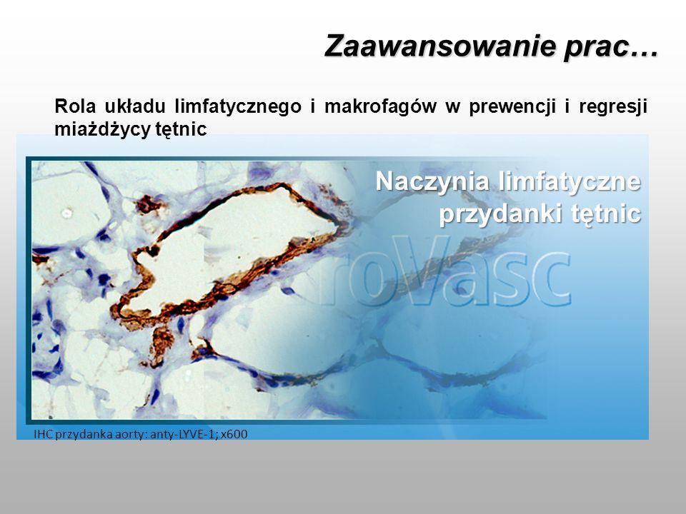 Zaawansowanie prac… Rola układu limfatycznego i makrofagów w prewencji i regresji miażdżycy tętnic Naczynia limfatyczne przydanki tętnic IHC przydanka