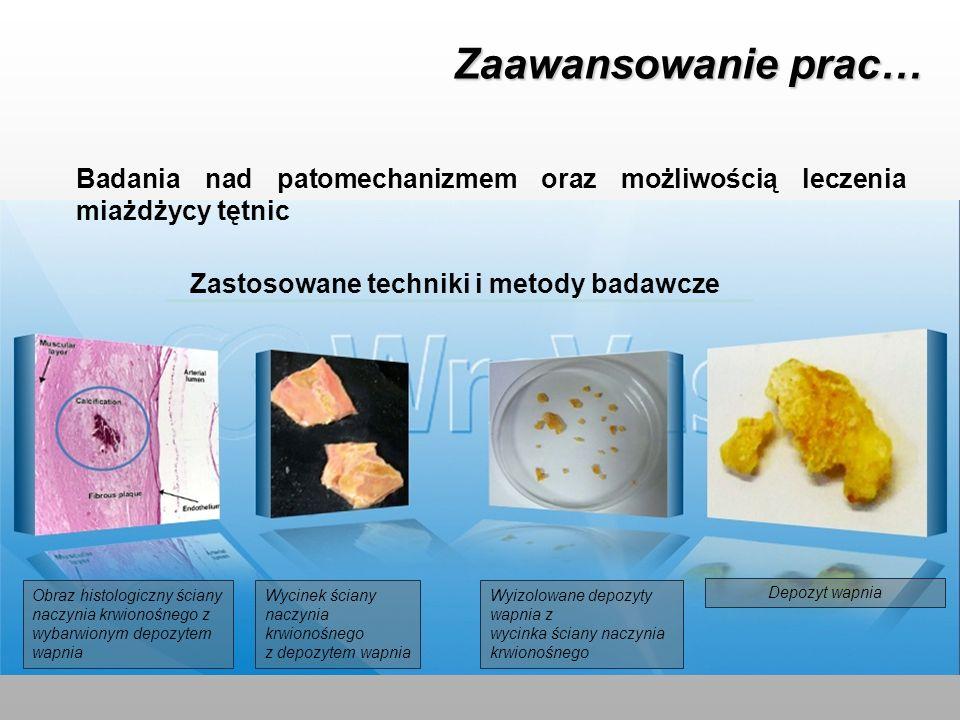 Zaawansowanie prac… Badania nad patomechanizmem oraz możliwością leczenia miażdżycy tętnic Zastosowane techniki i metody badawcze Obraz histologiczny