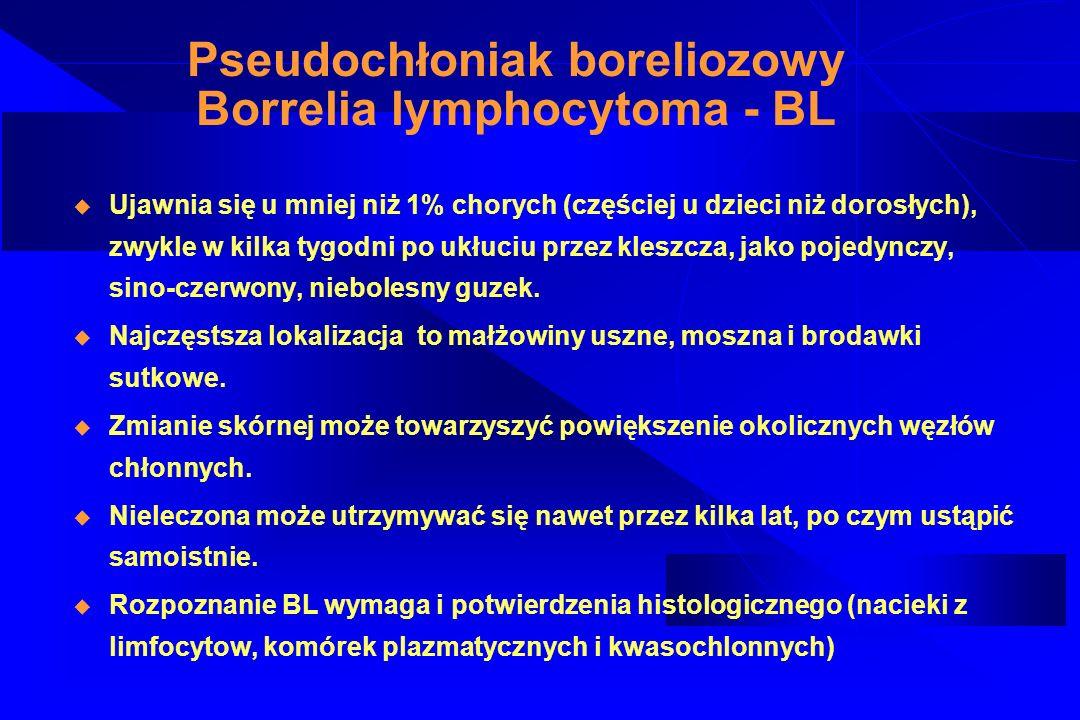 Pseudochłoniak boreliozowy Borrelia lymphocytoma - BL