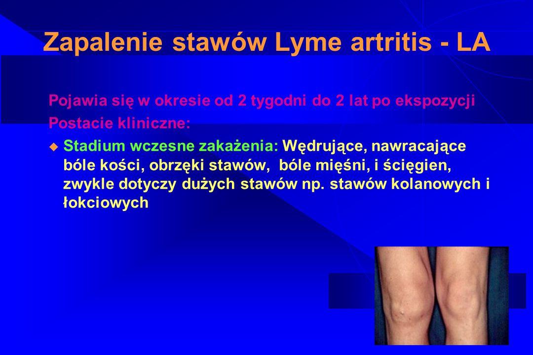 Zapalenie stawów Lyme artritis - LA u Zakażenie przewlekłe u Nawracające bóle kostne, stawowe lub tkanek okołostawowych ujawniają się przez miesiące lub lata z długimi okresami samoistnych remisji, są asymetryczne i najczęściej dotyczą stawów kończyn.
