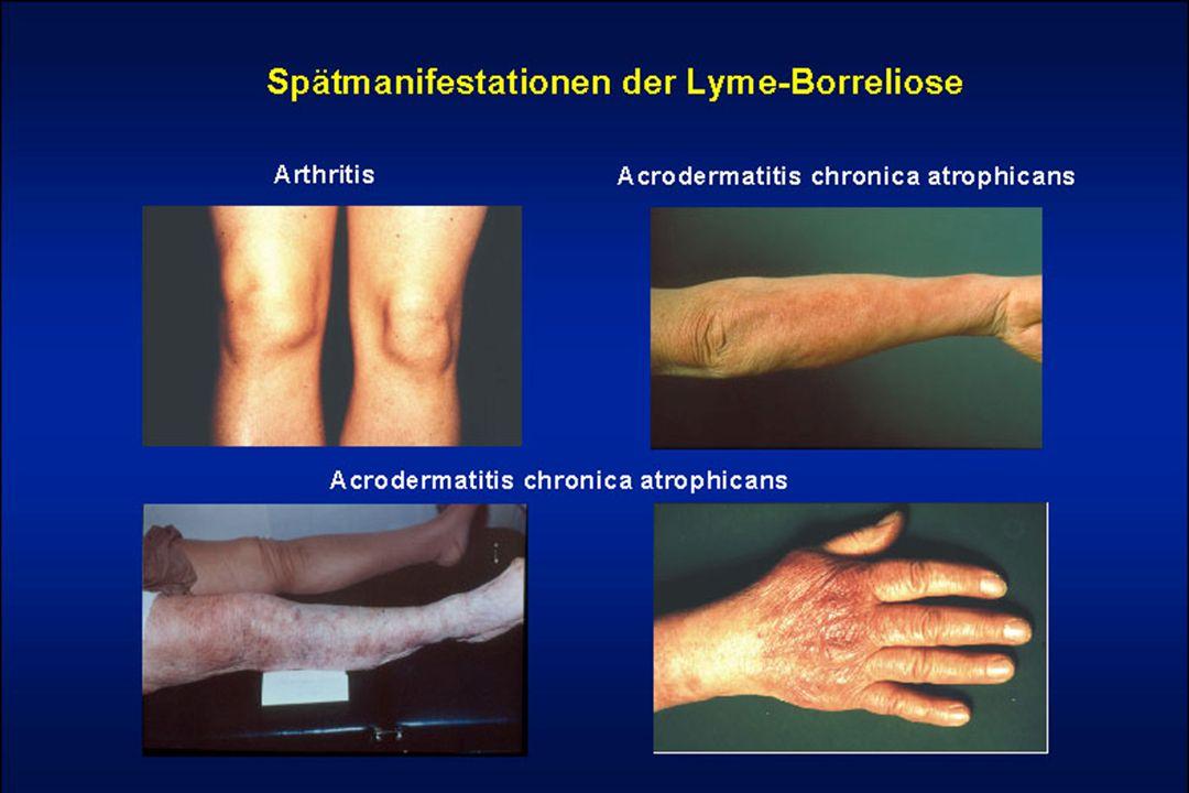 Diagnostyka Boreliozy z Lyme Wywiad Diagnostyka mikrobiologiczna bezpośrednia – hodowla krętków z tkanek, płynów ustrojowych- wysoki odsetek wyników fałszywie ujemnych Diagnostyka mikrobiologiczna pośrednia (serologiczna ) - badania przeciwciał IgM i IgG metodą immunoenzymatyczną ELISA, wysoka czułość, niska swoistość testów – nie eliminują testow fałszywie dodatnich Testy potwierdzenia Western – Blot Obie metody wzajemnie się uzupełniają.