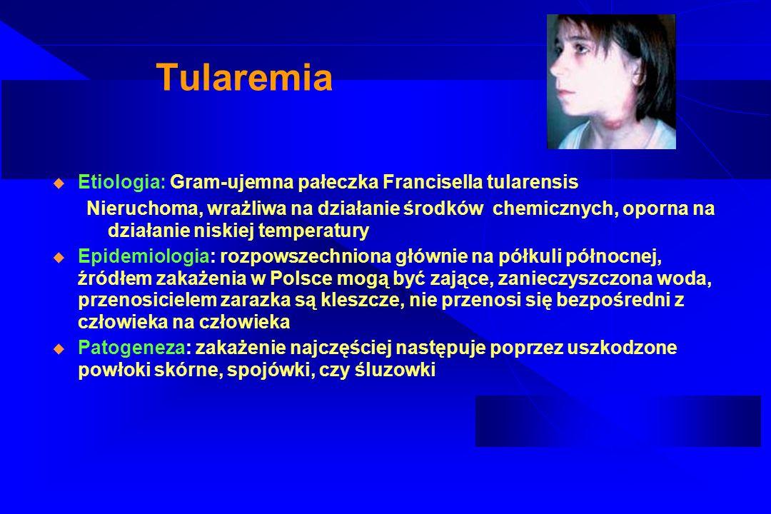 Tularemia – obraz kliniczny Okres wylęgania: 3-5dni W miejscu zakażenia zmiana pierwotna o charakterze grudki, potem krosty, a następnie owrzodzenia Początek ostry z gorączką dreszczami, bólami głowy i bólami mięśniowymi Postacie kliniczne: – Wrzodziejąco – węzłowa – Węzłowa – Oczno –węzłowa – Anginowa – Płucna – Trzewna (durowata)