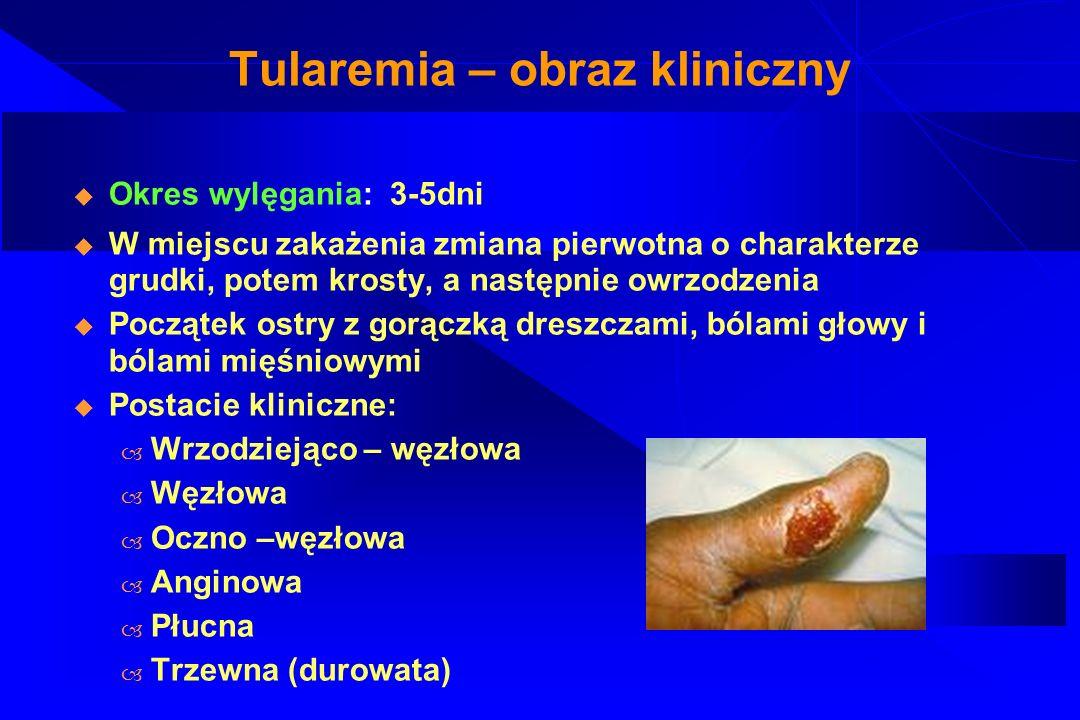 Tularemia – diagnostyka i leczenie Odczyn immunofluorescencji Test ELISA Odczyn śródskórny Badania bakteriologiczne Antybiotykoterapia aminoglikozydy, streptomycyna, tetracykliny, cefalosporyny