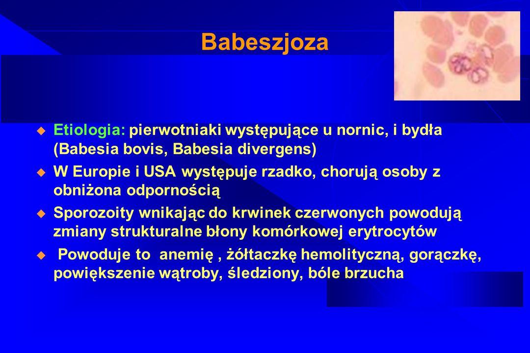 Babeszjoza – diagnostyka i leczenie Diagnostyka: Morfologia krwi Badanie moczu Badanie stężenia mocznika, kreatyniny oraz aktywności aminotransferaz Diagnostyka mikrobiologiczna Diagnostyka mikrobiologiczna pośrednia Leczenie: chinina+klindamycyna lub doksycyklina+ klindamycyna+ azytromycyna, lub transfuzja wymienna krwi
