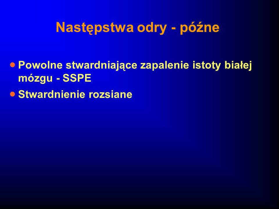 Następstwa odry - późne Powolne stwardniające zapalenie istoty białej mózgu - SSPE Stwardnienie rozsiane