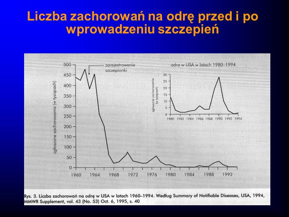 Liczba zachorowań na odrę przed i po wprowadzeniu szczepień
