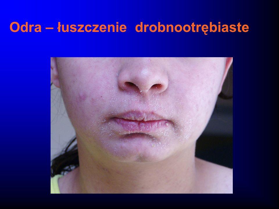 Varicella-zoster: jeden wirus - dwie choroby Wirus varicella-zoster- Rodzina Herpesviridae Ospa wietrznaPółpasiec