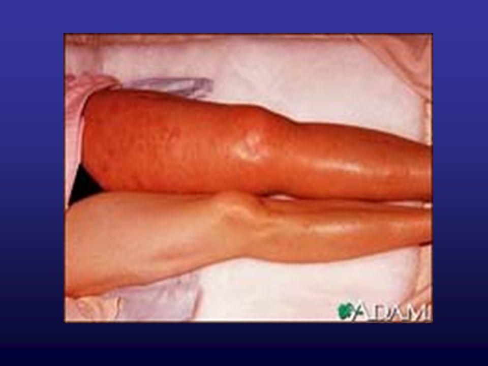 OBJAWY Hipotonia - RR skurczowe < 90 /mm Hg obniżenie RR o co najmniej 40mm Hg Zimna, blada, wilgotna skóra Oliguria Zaburzenia świadomości