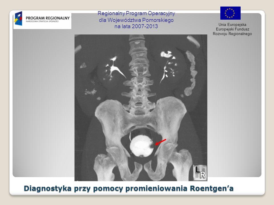 Regionalny Program Operacyjny dla Województwa Pomorskiego na lata 2007-2013 Unia Europejska Europejski Fundusz Rozwoju Regionalnego Ultrasonografia Ultrasonografia