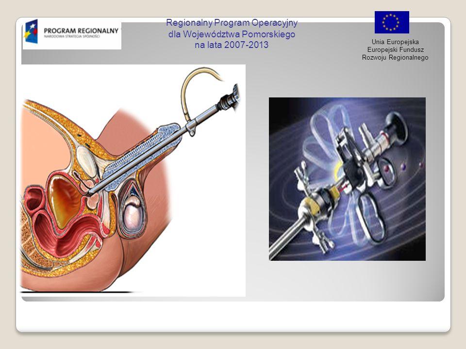 Regionalny Program Operacyjny dla Województwa Pomorskiego na lata 2007-2013 Unia Europejska Europejski Fundusz Rozwoju Regionalnego Podsumowanie korzyści płynących z cystoskopii fluorescencyjnej vs WLC Prospektywne badania kliniczne wykazały, że cystoskopia fluorescencyjna jest w stanie wykryć o 30% więcej przypadków raka pęcherza moczowego, w porównaniu ze standardową WLC Wzrost poziomu diagnozowanych wysoce złośliwych guzów in situ (CIS) (67% więcej zmian CIS) w porównaniu ze standardową WLC Możliwość zastosowania skuteczniejszej terapii u 20% pacjentów ze zdiagnozowanym guzem w porównaniu ze standardową WLC Lepsze wyniki diagnostyczne prowadzące do możliwego długoterminowego zmniejszenia nawrotów choroby Cystoskopia fluorescencyjna jest bardziej czuła niż standardowa WLC w zakresie identyfikacji guzów brodawczakowatych w stadium Ta.