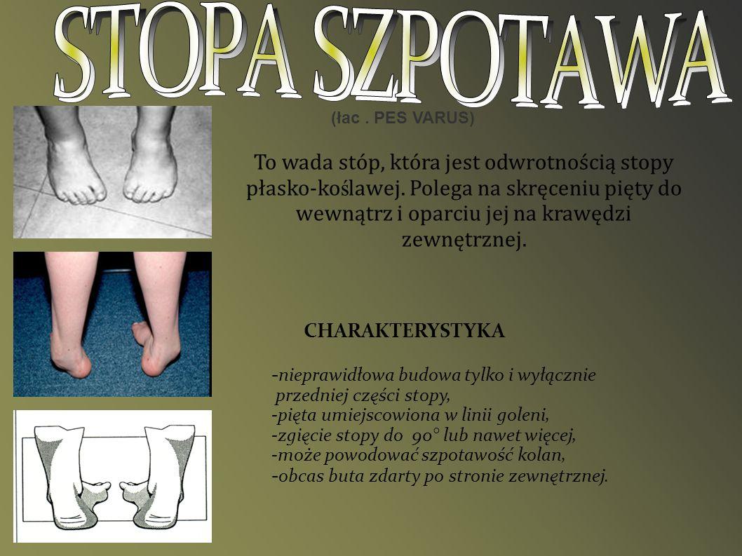(łac. PES VARUS) To wada stóp, która jest odwrotnością stopy płasko-ko ś lawej. Polega na skręceniu pięty do wewnątrz i oparciu jej na krawędzi zewnęt