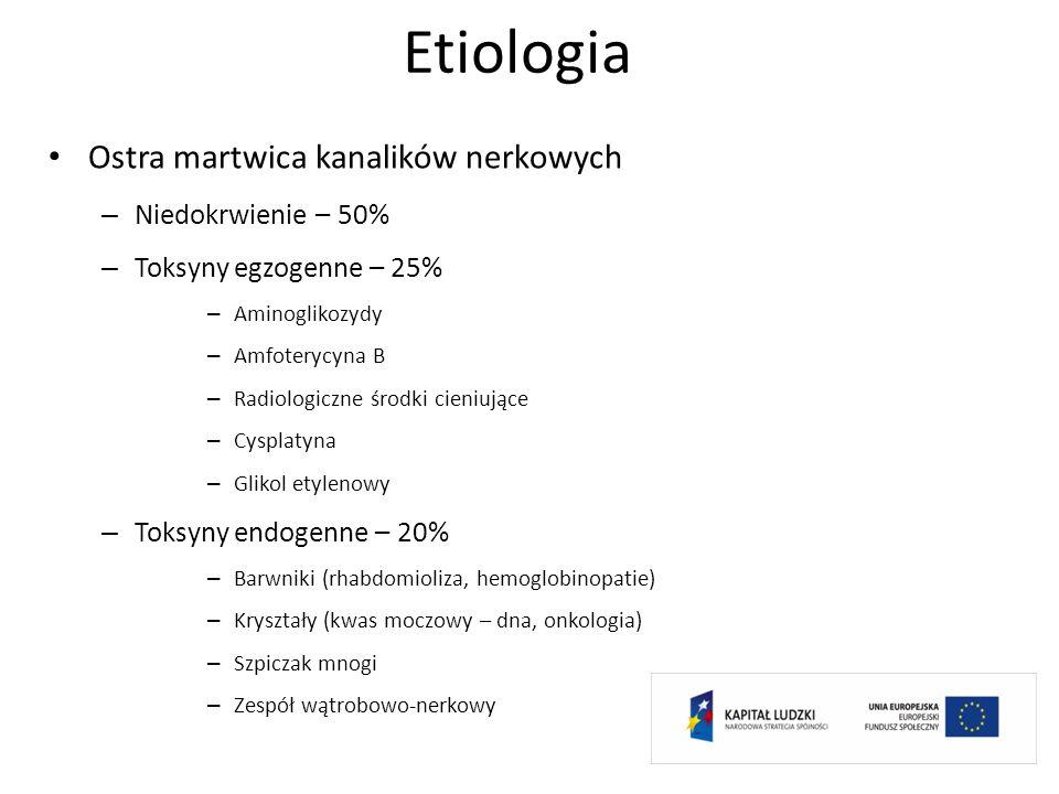 Etiologia Ostra martwica kanalików nerkowych – Niedokrwienie – 50% – Toksyny egzogenne – 25% – Aminoglikozydy – Amfoterycyna B – Radiologiczne środki