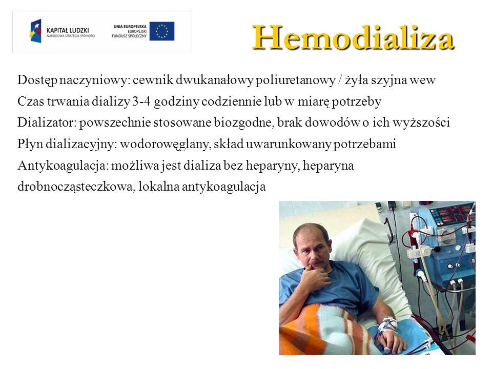 Hemodializa Dostęp naczyniowy: cewnik dwukanałowy poliuretanowy / żyła szyjna wew Czas trwania dializy 3-4 godziny codziennie lub w miarę potrzeby Dia