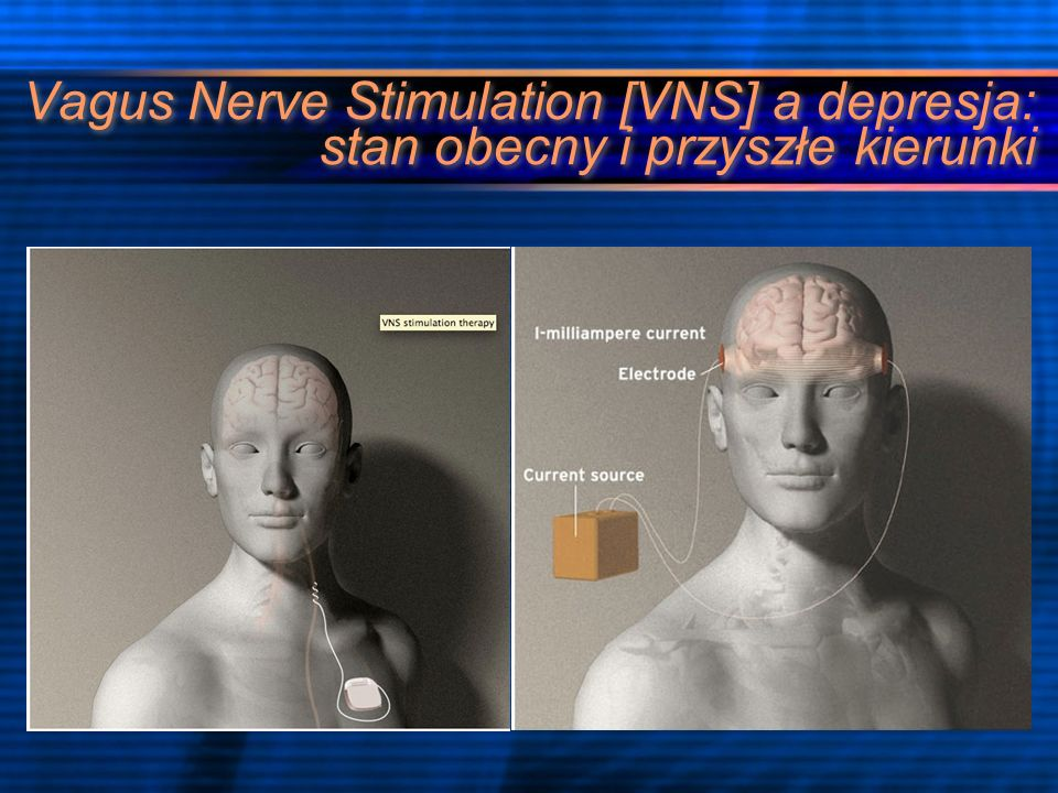 Historia powstania VNS II połowa XIX wieku wynalezienie przez Croniga pierwszego urządzenia do stymulacji nerwu błędnego [CN X] 1938 Bailey i Bremer zarejestrowali wpływ stymulacji CN X na OUN w zapisie Elektroencefalogramu [EEG] 1985 Zabara pokazał, że użycie VNS może zatrzymać napad drgawek u psów 1988 Penry i współpracownicy zaprojektowali pierwszy ludzki implant 1997 FDA zatwierdziło VNS jako leczenie wspomagające napadów częściowych epilepsji 2005 zatwierdzenie urządzenia jako terapii pomocniczej depresji opornej na leczenie II połowa XIX wieku wynalezienie przez Croniga pierwszego urządzenia do stymulacji nerwu błędnego [CN X] 1938 Bailey i Bremer zarejestrowali wpływ stymulacji CN X na OUN w zapisie Elektroencefalogramu [EEG] 1985 Zabara pokazał, że użycie VNS może zatrzymać napad drgawek u psów 1988 Penry i współpracownicy zaprojektowali pierwszy ludzki implant 1997 FDA zatwierdziło VNS jako leczenie wspomagające napadów częściowych epilepsji 2005 zatwierdzenie urządzenia jako terapii pomocniczej depresji opornej na leczenie