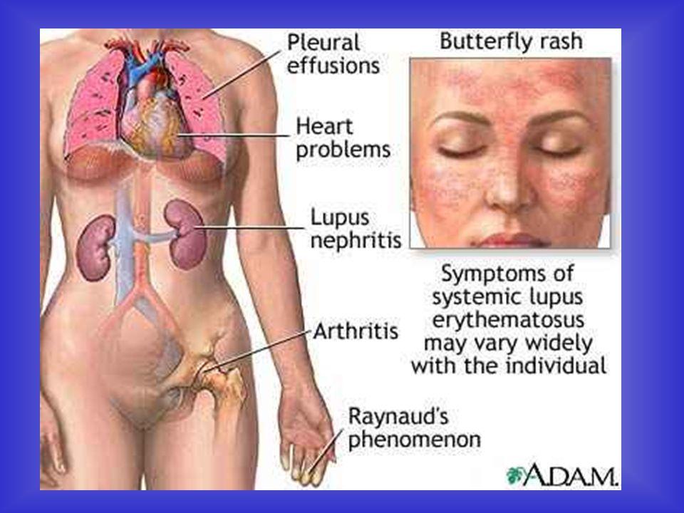 W toczniu może wystąpić: malar rash Łysienie Objaw Raynauda Ból stawów i mięśni PNN Zapalenie błon surowiczych Zmiany zastawkowe Powiększenie węzłów chłonnych Ból brzucha Autoimmunologiczne zapalenie wątroby Zapalenia trzustki Niedokrwistość Zaburzenia ze strony obwodowego układu nerwowego Oraz coś na co wszyscy czekamy....
