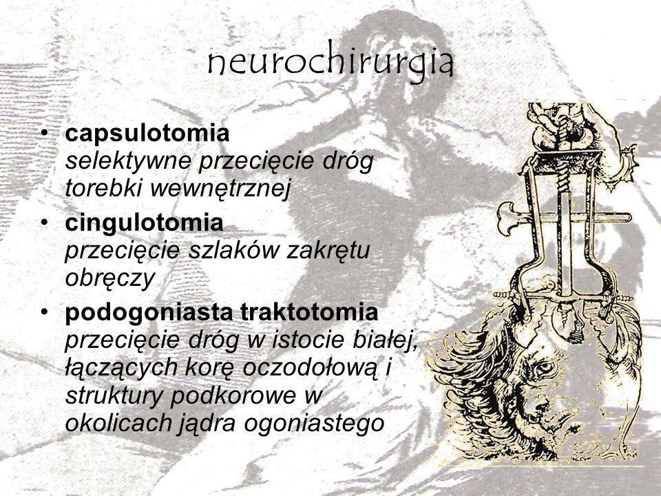 neurochirurgia capsulotomia selektywne przecięcie dróg torebki wewnętrznej cingulotomia przecięcie szlaków zakrętu obręczy podogoniasta traktotomia pr