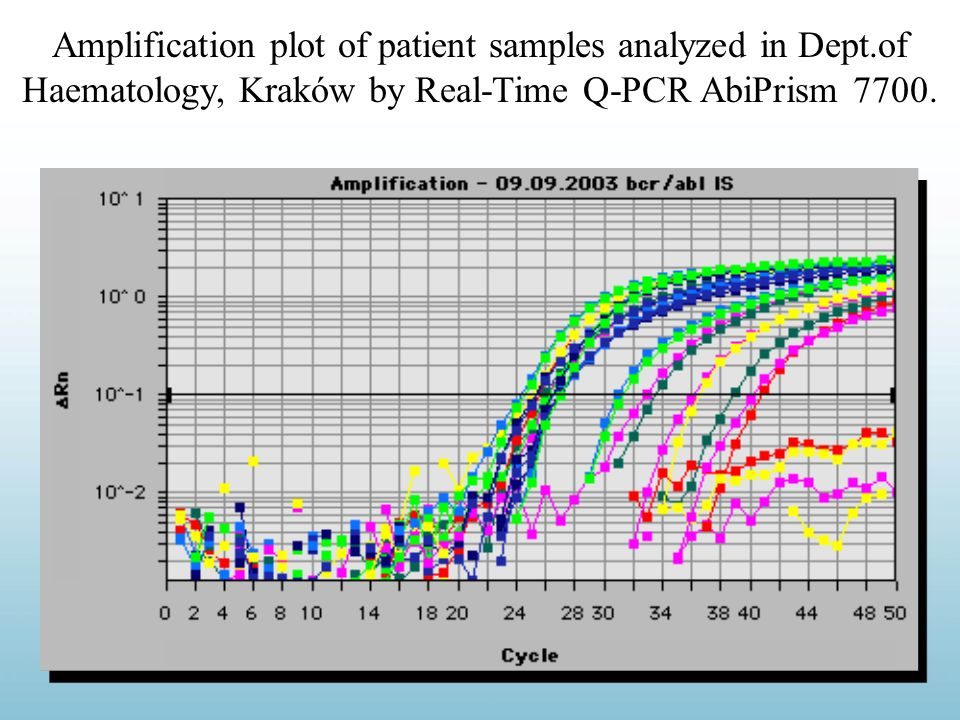 Amplification plot of patient samples analyzed in Dept.of Haematology, Kraków by Real-Time Q-PCR AbiPrism 7700.