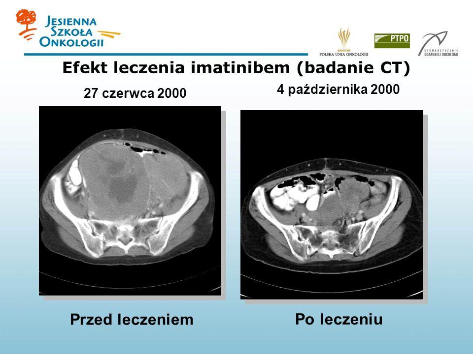 Efekt leczenia imatinibem (badanie CT) 27 czerwca 2000 4 października 2000 Przed leczeniem Po leczeniu
