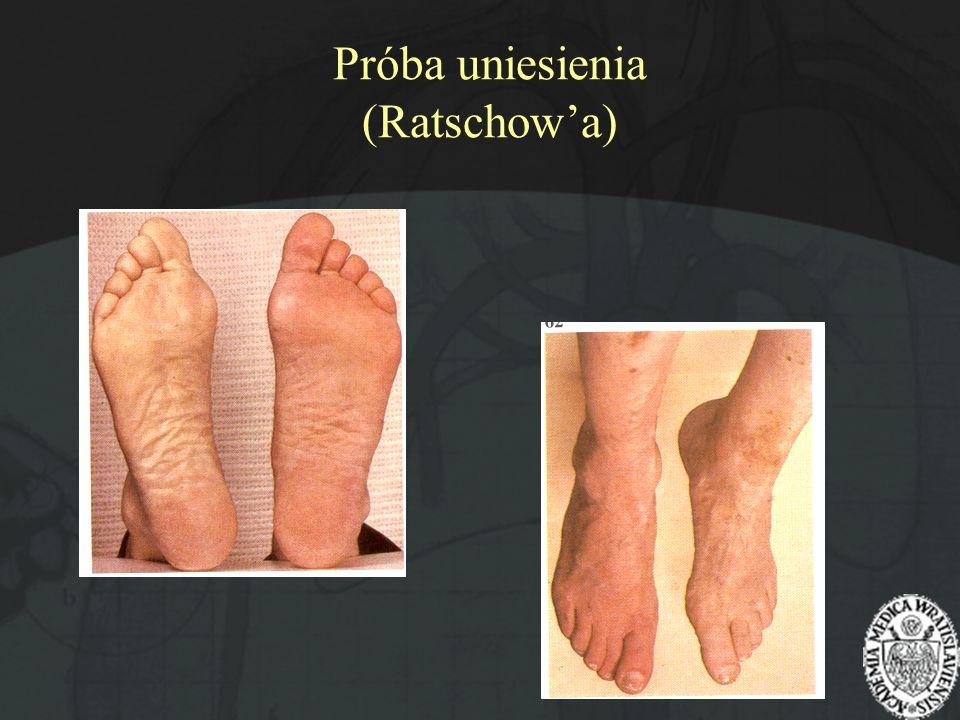 Próba uniesienia (Ratschowa)