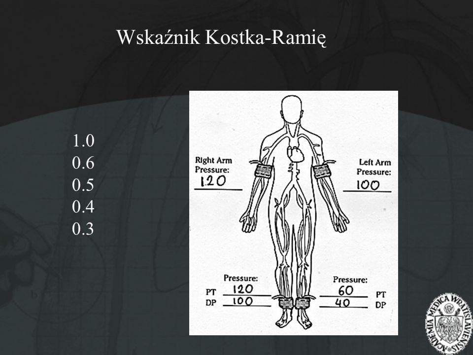 Wskaźnik Kostka-Ramię 1.0 0.6 0.5 0.4 0.3