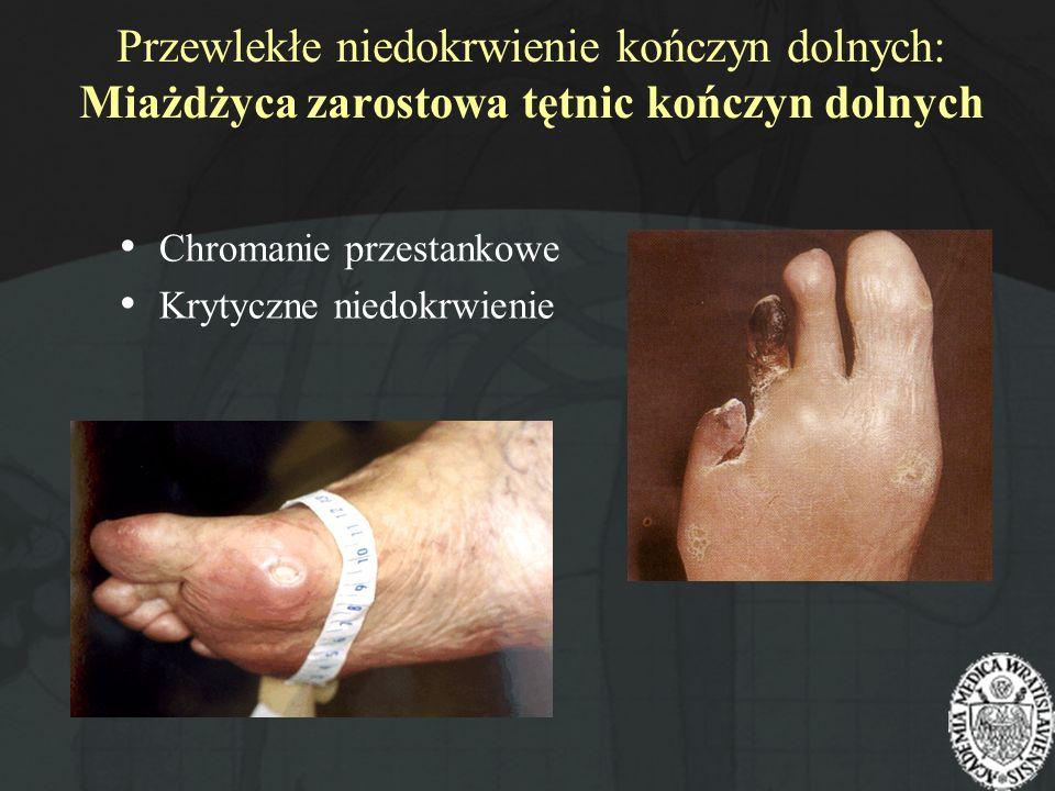 Przewlekłe niedokrwienie kończyn dolnych: Miażdżyca zarostowa tętnic kończyn dolnych Chromanie przestankowe Krytyczne niedokrwienie