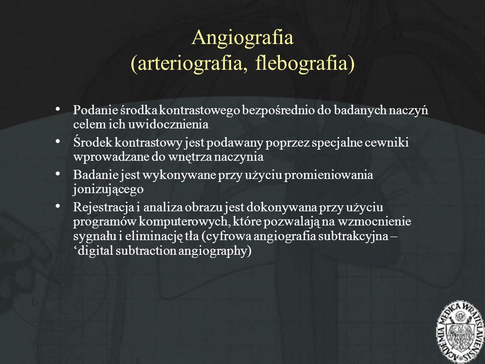 Angiografia (arteriografia, flebografia) Podanie środka kontrastowego bezpośrednio do badanych naczyń celem ich uwidocznienia Środek kontrastowy jest