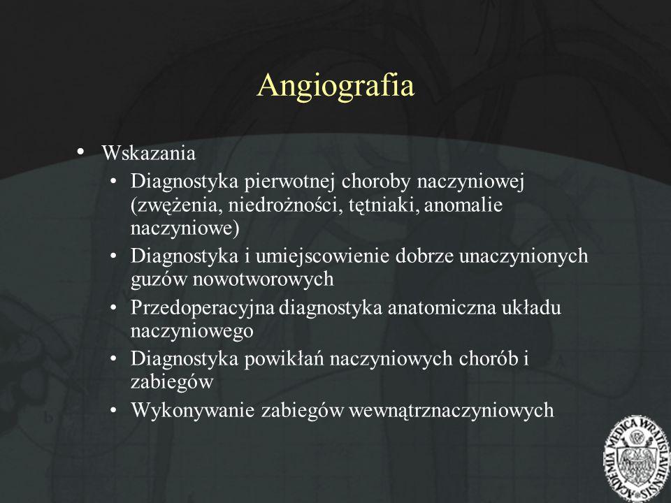Angiografia Wskazania Diagnostyka pierwotnej choroby naczyniowej (zwężenia, niedrożności, tętniaki, anomalie naczyniowe) Diagnostyka i umiejscowienie