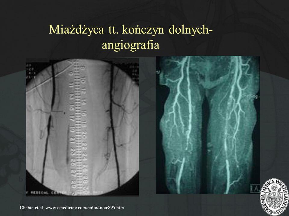 Miażdżyca tt. kończyn dolnych- angiografia Chahin et al.:www.emedicine.com/radio/topic895.htm