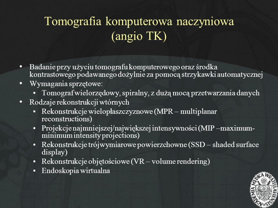 Tomografia komputerowa naczyniowa (angio TK) Badanie przy użyciu tomografu komputerowego oraz środka kontrastowego podawanego dożylnie za pomocą strzy