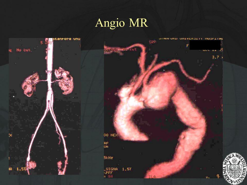 Angio MR