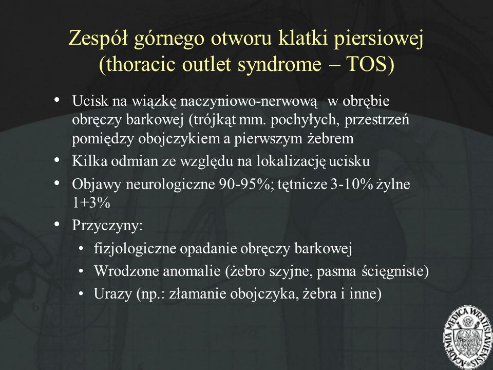Zespół górnego otworu klatki piersiowej (thoracic outlet syndrome – TOS) Ucisk na wiązkę naczyniowo-nerwową w obrębie obręczy barkowej (trójkąt mm. po