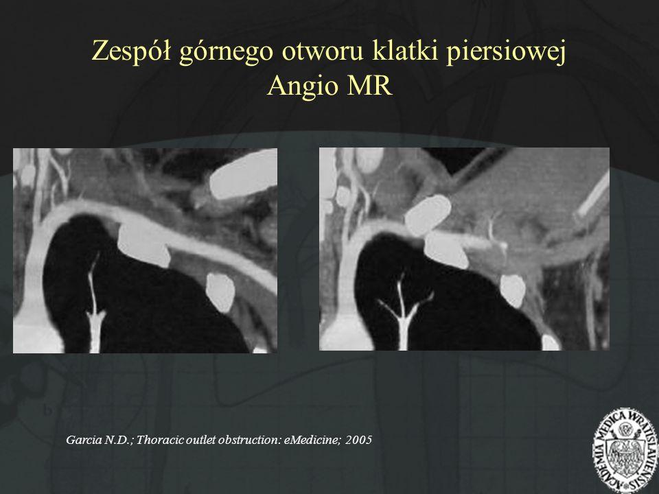 Zespół górnego otworu klatki piersiowej Angio MR Garcia N.D.; Thoracic outlet obstruction: eMedicine; 2005