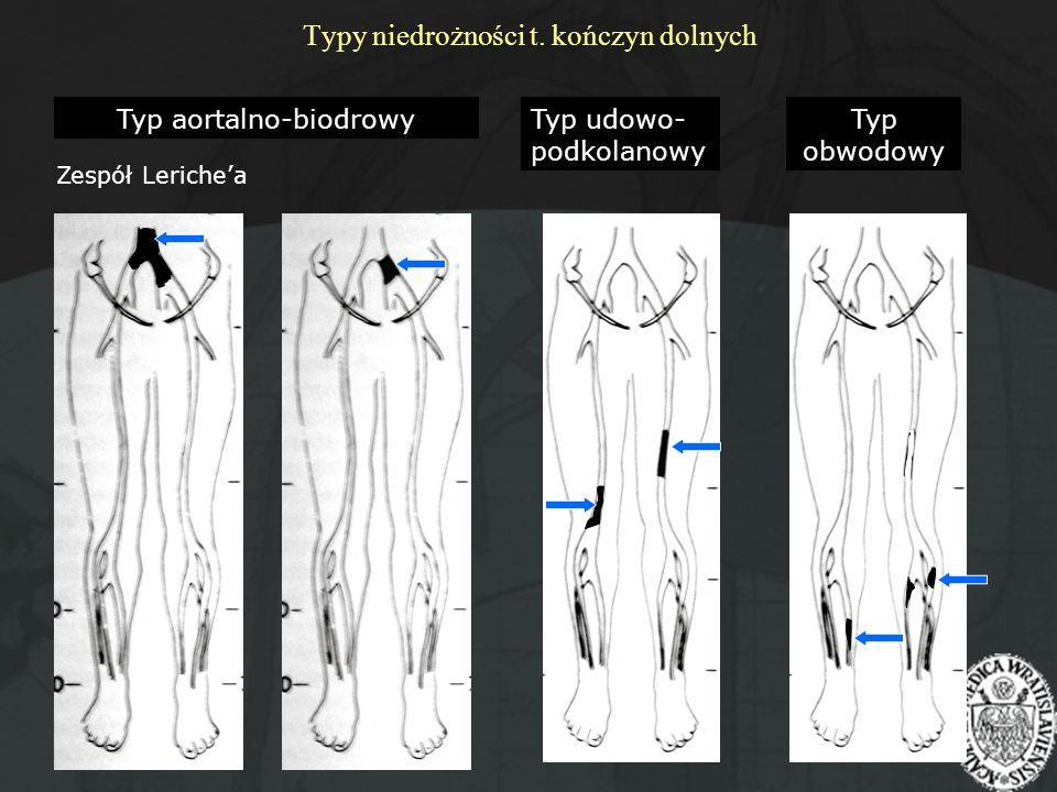Typy niedrożności t. kończyn dolnych Typ aortalno-biodrowy Zespół Lerichea Typ udowo- podkolanowy Typ obwodowy