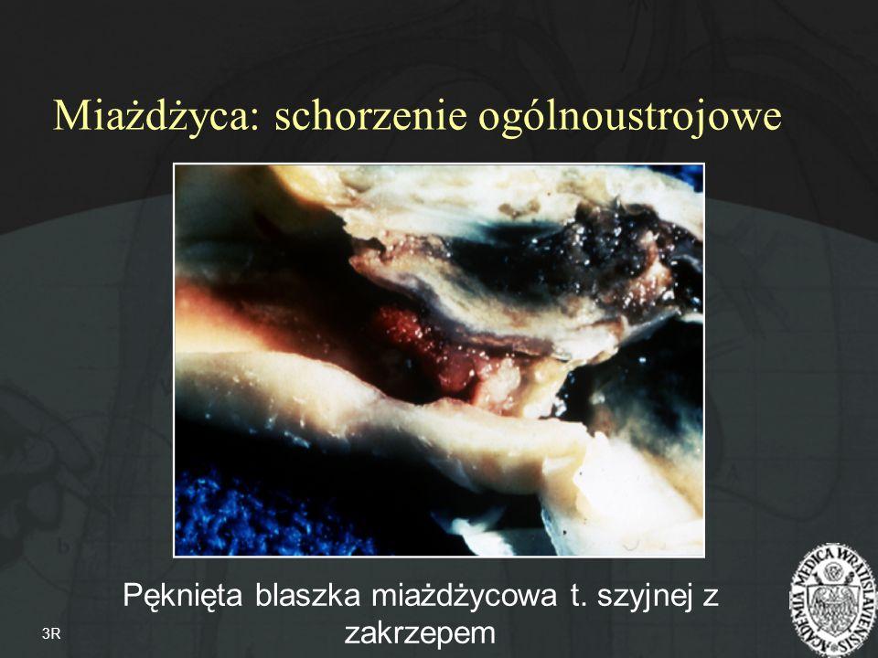 Miażdżyca zarostowa tętnic k.dolnych Zwężenie t. nerkowej Tętniak aorty 9-11% Ch.N.S.