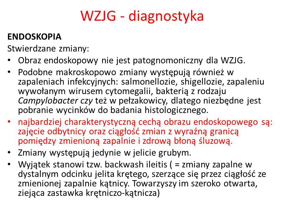 WZJG - diagnostyka ENDOSKOPIA Stwierdzane zmiany: Obraz endoskopowy nie jest patognomoniczny dla WZJG. Podobne makroskopowo zmiany występują również w